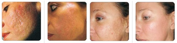 Fractional Skin Rejuvenation2